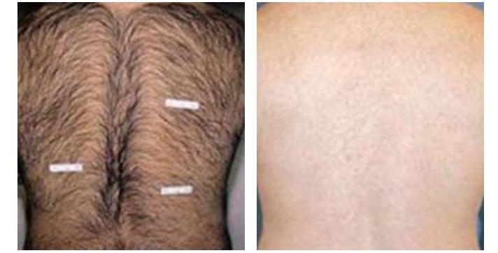 LightSheer Laser Treatment