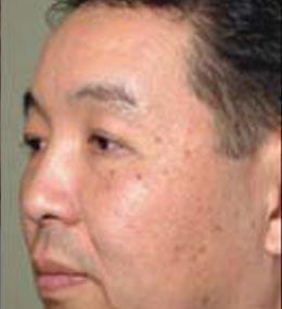 Before Profractional Laser Treatment