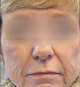 Before ProFractional LAser Procedure