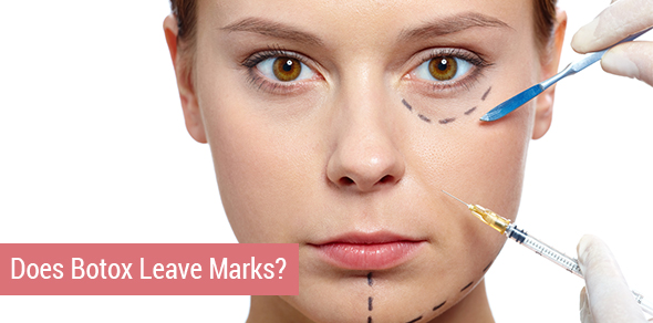 Does Botox Leave Marks