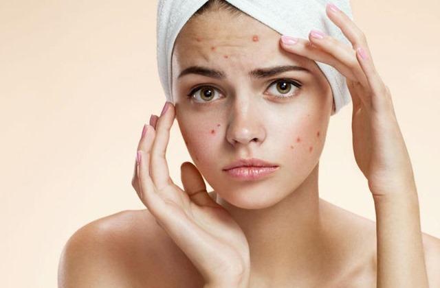 acne-juvenil(1)