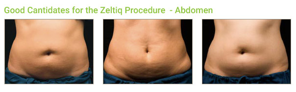 Coolsculpting Procedure: Abdomen