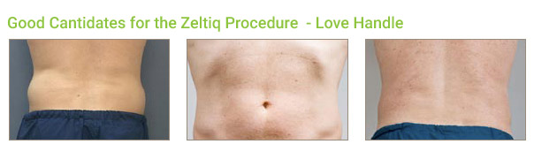 Coolsculpting Laser Body contouring: Love Handle
