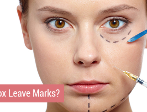 Does Botox Leave Injection Marks?