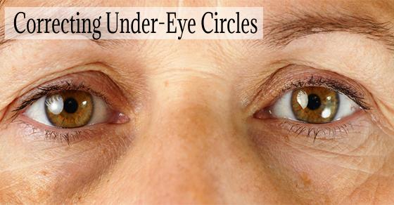 Under-Eye Circles