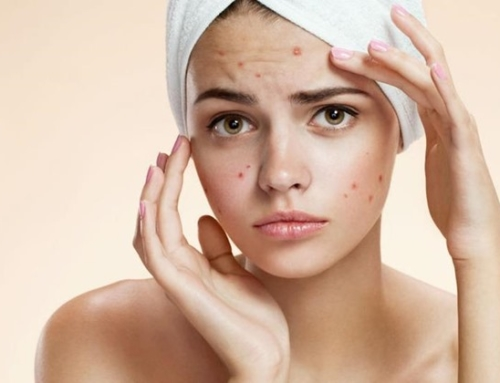 Acne- is becoming a problem?