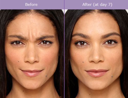 How Botox Can Solve More Than Just Wrinkles!