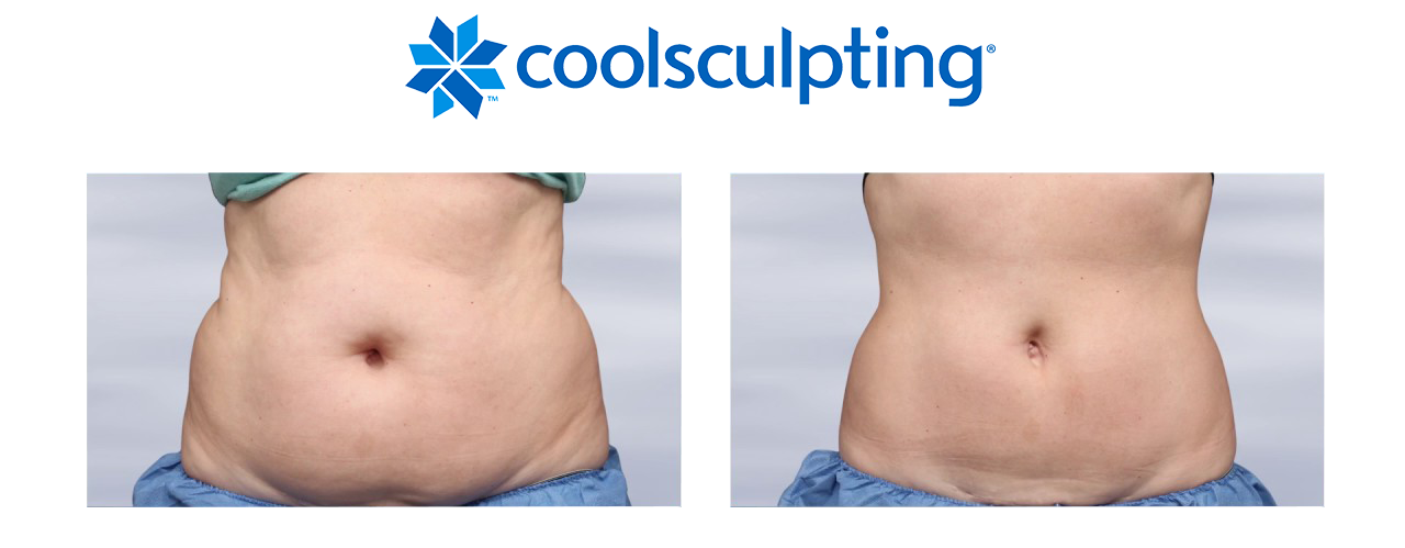 Coolsculpting Landing Page 2 - The Centre for Dermatology